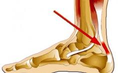 Đau gót chân (heel pain)