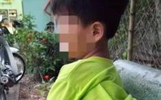 Bộ GD-ĐT yêu cầu xác minh học sinh lớp 1 bị cô giáo đánh bầm tím