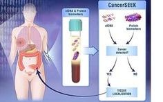 Tìm ra phương pháp mới: Thử máu phát hiện ung thư