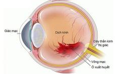 Xuất huyết dịch kính: Chẩn đoán và điều trị