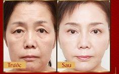 Phương pháp Laser Liposonic xóa nhăn, phục hồi da chảy xệ