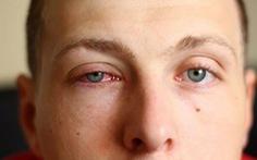 Nhận biết và phòng bệnh đau mắt đỏ