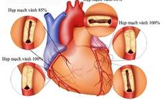 Hiểu biết về bệnh động mạch vành