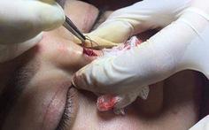 Biến chứng nguy hiểm khi nâng mũi bằng chỉ
