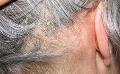 Những điều cần biết về viêm da tiết bã