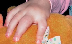 Bệnh xương khớp có thể gặp ở cả trẻ em và người lớn