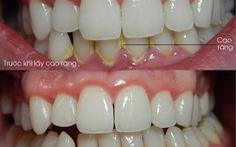 Tại sao phải lấy cao răng?
