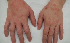 Một số thuốc điều trị viêm da cơ địa