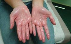 Lòng bàn tay thường xuyên bị ra mồ hôi