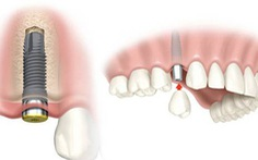 Ưu điểm răng Implant ETK Active của Nha Khoa Đông Nam