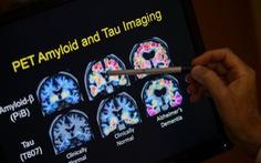 Có thể 'trị' bệnh Alzheimer mà không cần đến thuốc