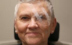 Chăm sóc mắt sau phẫu thuật đục thủy tinh thể