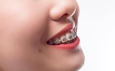 Giải pháp hiệu quả, thẩm mỹ khi niềng răng hô