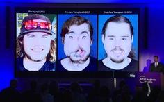 Ca ghép mặt kỳ tích nhờ công nghệ in 3D