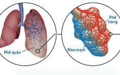 Xơ hóa phổi vô căn