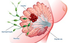 Các yếu tố nguy cơ phát triển ung thư vú
