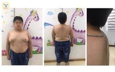 Trẻ vị thành niên mọc lông, bé nam có ngực lớn như phụ nữ vì lạm dụng thuốc