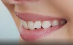 Vì sao con người lại có răng nanh?