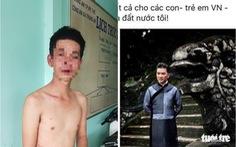Điều tra Facebooker Đàm Vĩnh Hưng nghi kích động bạo lực vụ cha đánh con