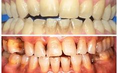 Bệnh viêm quanh răng do hút nhiều thuốc lá