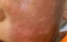 Da mặt bị bỏng rộp sau khi đeo mặt nạ siêu nhân