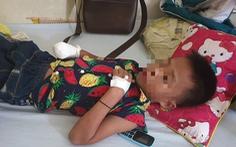 Đèn pin đang sạc phát nổ, bé trai 9 tuổi bị mất bàn tay
