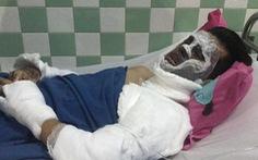 Việt kiều bị tạt axit rồi cắt gân chân: 'Kẻ ác ra tay rất nhanh'