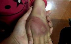 Công an điều tra vụ bé gái 8 tuổi nghi bị bố đánh tím người