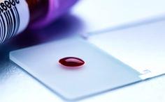 Thiết bị phát hiện nhanh ung thư chỉ qua một giọt máu