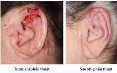 Bệnh ung thư tai