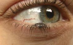 Nốt ruồi ở mi mắt