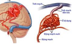 Dị dạng mạch máu dạng hang