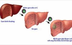 Thắc mắc thường gặp về viêm gan siêu vi C