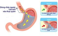 Sự khác biệt giữa chứng ợ nóng và bệnh tim mạch