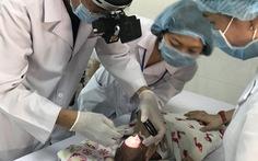 Lần đầu tiên triển khai phẫu thuật laser bệnh lý mắt trẻ sinh non tại Cần Thơ