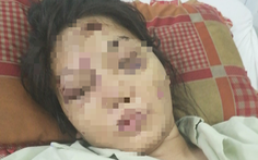 Khởi tố thanh niên trong nhóm đánh sẩy thai cô gái 18 tuổi vì món nợ 1,6 triệu đồng