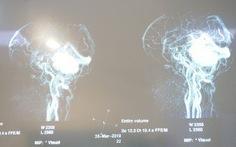 Cuộc đại phẫu 15 giờ cứu sống nữ bệnh nhân u não
