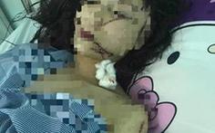 Cô gái 18 tuổi bị bạn rạch mặt, cổ, tay phải khâu 60 mũi