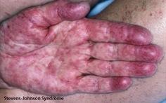 Hội chứng Stevens-Johnson