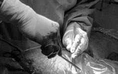 Cứu sản phụ nứt góc tử cung chảy gần nửa lít máu trong ổ bụng