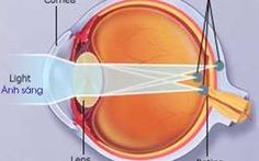 Loạn thị, nguyên nhân và cách điều trị