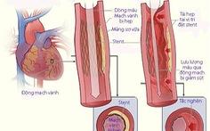 Tái hẹp sau nong mạch và đặt stent