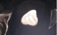 Vòng tránh thai 'đi lạc' vào bàng quang, tạo sỏi gần 6cm