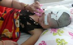 Cự cãi vì 500 đồng mua nước đá, một phụ nữ bị đánh chấn thương sọ não