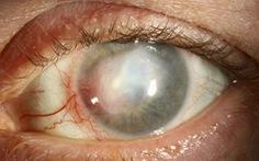 Viêm giác mạc herpes
