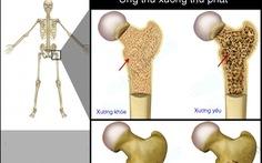 Ung thư di căn xương