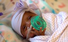 Em bé nhỏ nhất thế giới nặng 243 gram sống sót kỳ diệu