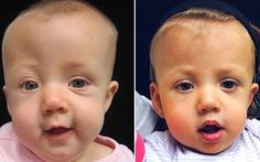 Dị tật dính khớp sọ sớm ở trẻ em