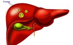 Nang gan, cách phân biệt các nang ở gan.