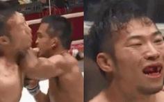 Võ sĩ MMA Nhật bị đối thủ Thái Lan đánh văng răng cửa